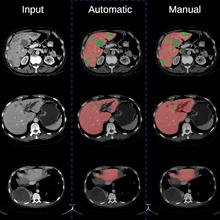 Segmentation de lésions dans un organe à l'aide de techniques d'apprentissage automatique, à partir d'une image source de tomodensitométrie (CT scan) (à gauche), réalisée par une architecture de réseaux de neurones convolutifs (au centre) et manuellement