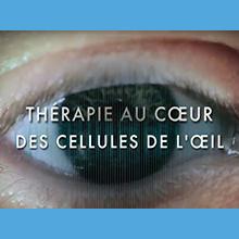Thérapie au cœur des cellules de l'œil