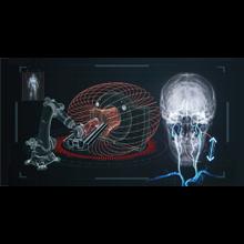 Chirurgie endovasculaire : une nouvelle percée au Laboratoire de nanorobotique de Polytechnique