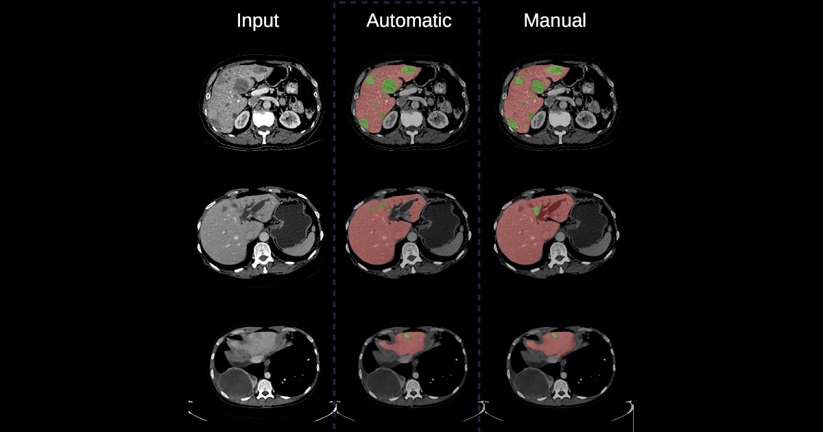 Segmentation of lesions in an organ using machine learning techniques, from a CT-scan image (left), performed by a convolutional neural network architecture (center) and manually (right). (Credit : Eugene Vorontsov)