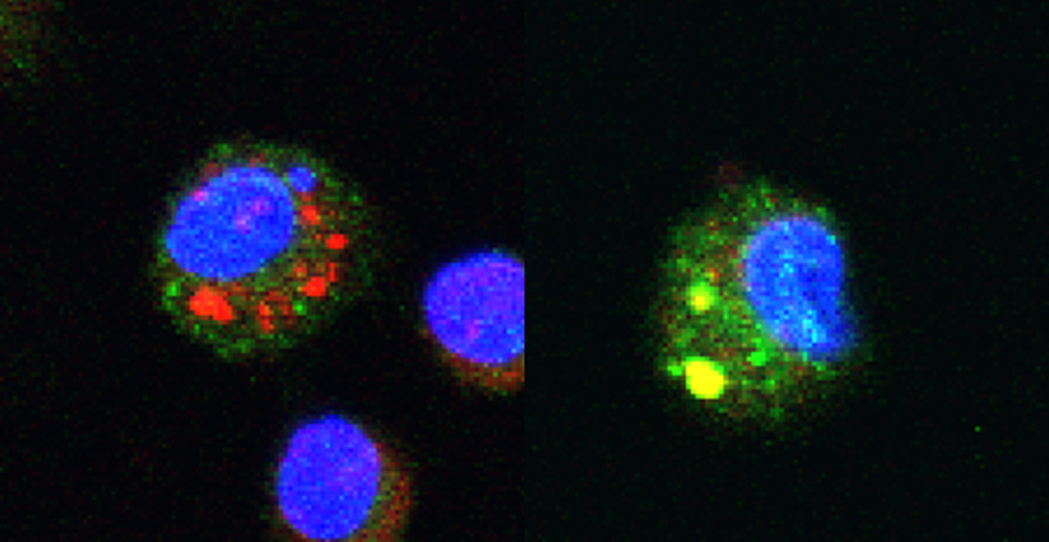 Left image: Chitosan, perceived as a foreign body, is absorbed and retained in the phagosomes of a macrophage (small red patches). Right image: the chitosan chain, when it is of the right length, becomes expelled from the phagosome (yellow patches); the macrophage reacts as though being faced with a bacterium and produces anti-inflammatory molecules